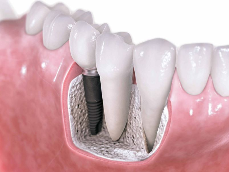Dental implants model for South Adelaide patients