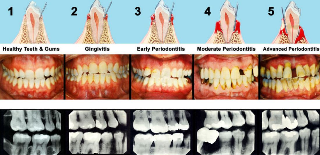 Gum Disease A Transmissible Infection