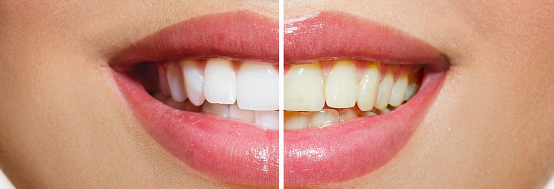 Before and after teeth whitening near South Adelaide