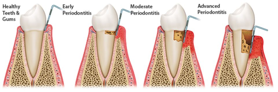 symptons of Periodontal Disease