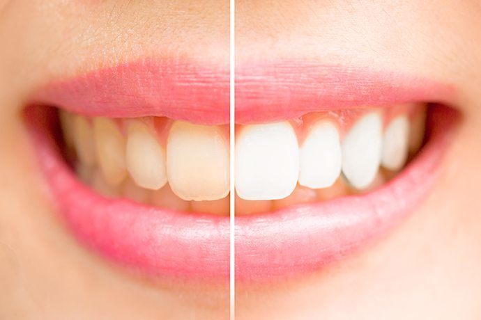 Tooth whitening Adelaide